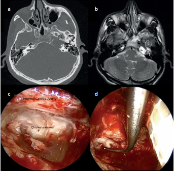 Endoscope-Assisted Surgery for Petrous Bone Cholesteatoma with Hearing Preservation